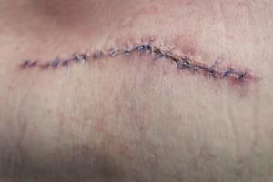scar, wound,